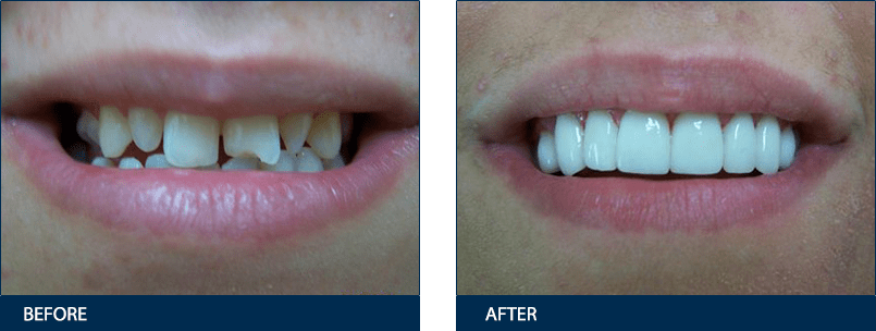 dentist before after gallery